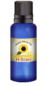 H-Scars Scar Supplement Review