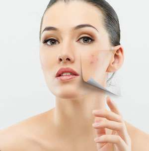 Acne Scar Treatment
